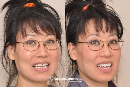 If you are looking for prepless Porcelain Veneers you should visit  http://www.faceliftdentistry.com/. You can get the best treatment from award winning Doctors.  For more visit the website now.  #preplessPorcelainVeneers