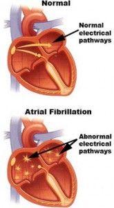 New drug treatment for atrial fibrillation