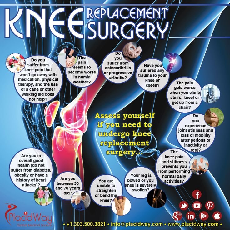 Mexico Orthopedic  Knee Surgery http://bit.ly/29banwo #Knee #Replacement in #Mexico @USA @Canada