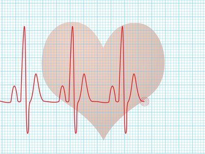 Home Remedies to Ease Quick Heart Rate