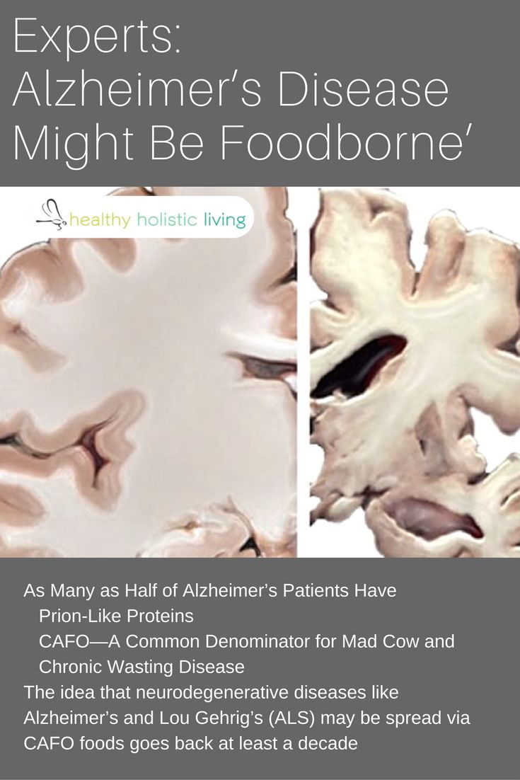 As many as half of all Alzheimer's patients have this protein in common. Follow this doctor's tips to reduce your risk of dementia with your diet. #alzheimers #protein #dementia #reducerisk