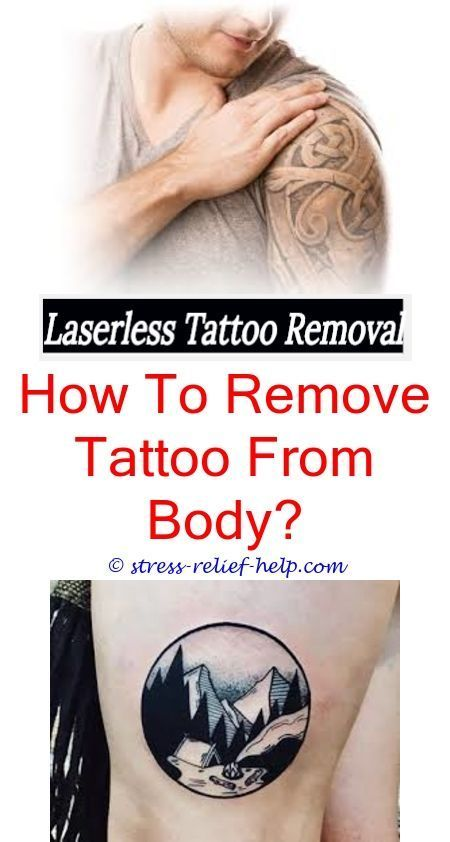 Removable Tattoo Ink Tattoo Removal Birmingham How Many Sessions