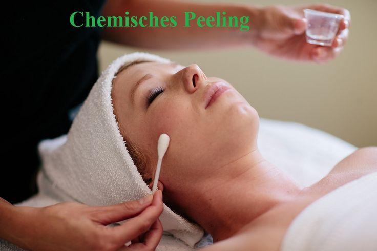 Bij een chemische peeling wordt één of meer van de bovenste huidlagen voor een deel verwijderd, met behulp van een etsende vloeistof. Er kunnen verschillende soorten zuren voor deze behandeling worden gebruikt, afhankelijk van het probleem en het gewenste resultaat.