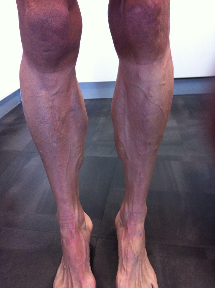 """Depilarse las piernas es algo muy común entre los ciclistas, algunas personas dicen """"Mientras mas lisa la piel es mejor"""". En la naturaleza marina encontramos animales que son realmente rápidos y verdaderamente lisos, por ejemplo: Un atún de aleta amarilla puede llegar hasta los 50mph, su piel es muy suave lo que le permite ser …"""