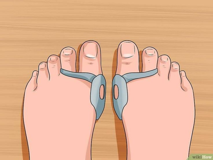 3 ways to get rid of bunions wikihow get rid of