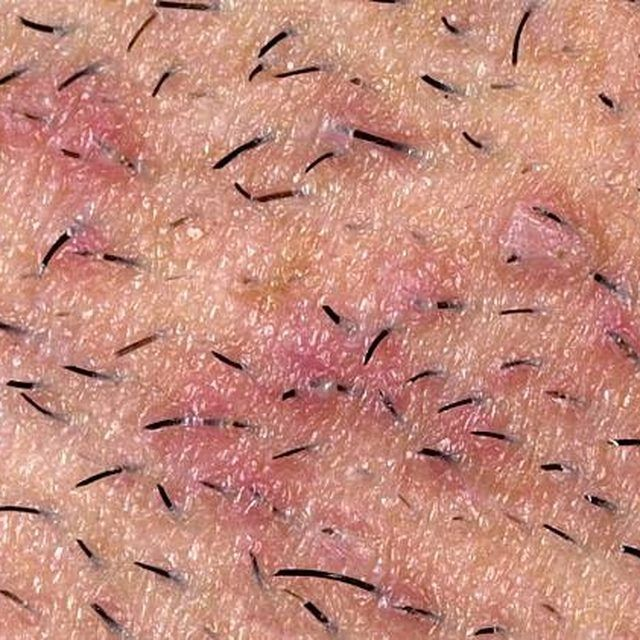 Ingrown hairs.
