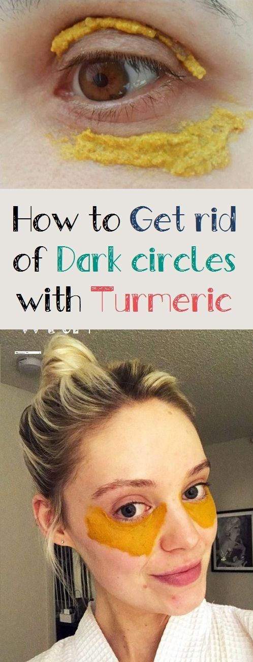 Get rid of Dark circles with Turmeric | Dark circles ...