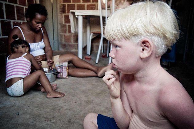 Albinos--The Origin of the Caucasian Race?