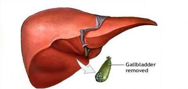 10 نصائح يجب اتباعها بعد عملية استئصال المرارة Gallbladder Fruit Pear