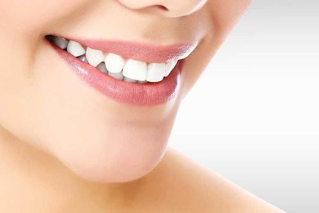 Clear Fixed Braces @ iDental, Shepherds Bush - 1 or 2 Arches!