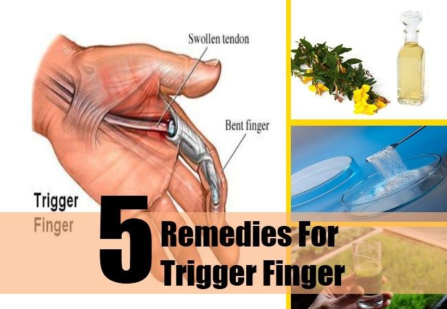 Trigger Finger Treatment & Management: Approach