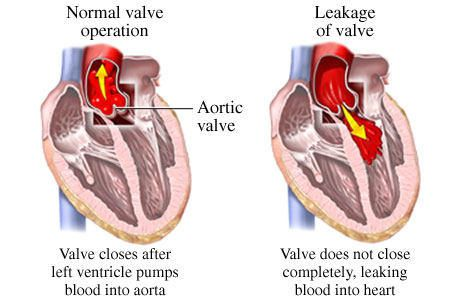 Aortic Valve Regurgitation - Symptoms, Causes, Treatment, Surgery