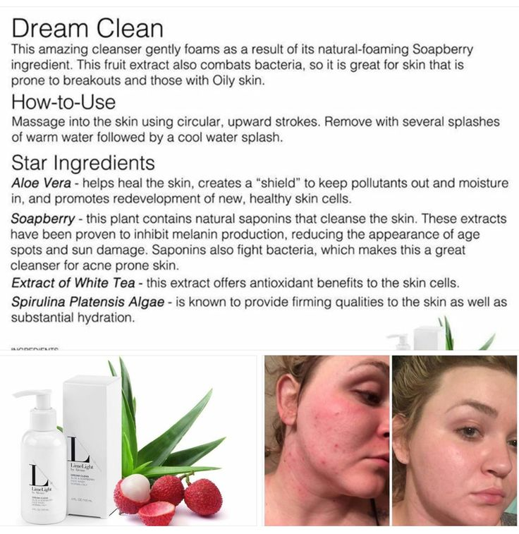 """Age Spots? Oily Skin? Acne? Dream Clean to the rescue!! Check out Kendall's results!! Kendall says.... """"At first I was terrified to post this! ...I've tried everything including dermatologist prescribed acne medicines... This is THREE DAYS ladies!! DREAM CLEAN for the win!!! This product alone will CHANGE LIVES! Struggling with acne my whole life I know what it can do to someone's confidence!""""  www.BeautyOfLimelight.com"""