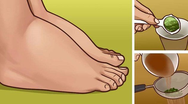 3 NATURAL REMEDIES FOR SWOLLEN FEET AND ANKLES