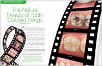 Tooth Colored Fillings at Infinite Smiles www.infinitesmiles.com/service/composite-fillings