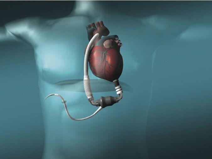 Best 33 lvad images on Pinterest | American medical association ...