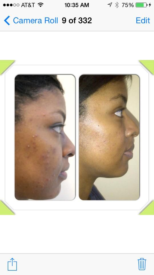 Nikki Harris before and After Unblemish and Macro Exfolliator