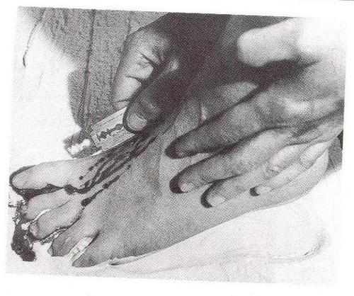 Gina Pane, Cuerpo presente, 1975 (Activismo vienés)