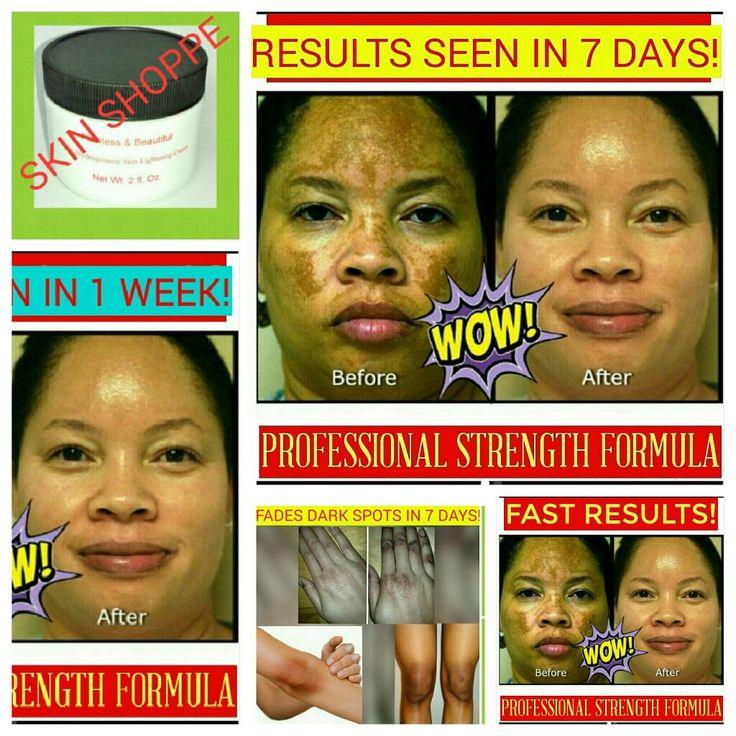 DARK SPOTS STRONGEST SKIN BLEACH ***YES IT REALLY WORKS*** #skinlightening #skinbleaching #exfoliation #exfoliating #antiaging #darkspots #agespots #acne #scars #darkcircles #stretchmarks #body #skincare #hyperpigmentation #skinwhitening #beauty #cosmetics #cosmeticsurgery #peel #mask #masque #beforeandafter #makeup