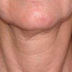 A megereszkedett, ráncos nyak kezelésére itt az egyik legjobb praktika!