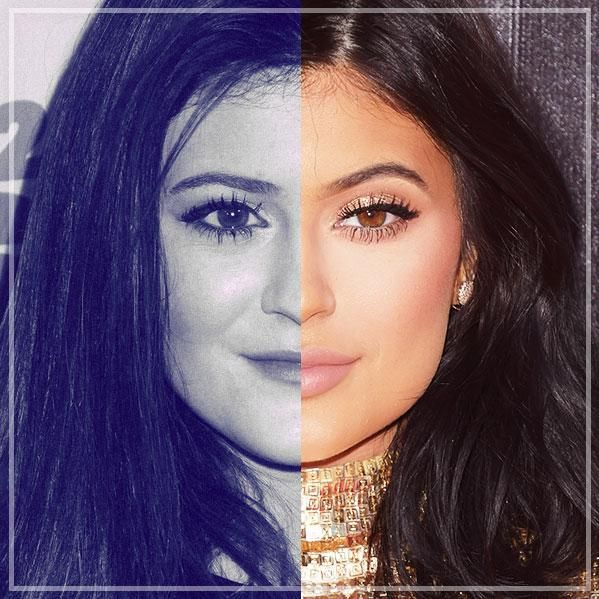 Kylie Jenner's Beauty Evolution: For her 18th birthday we've mapped out her transformation and supplied you with all the plastic surgery and lip plumping proof you need. Behold, a complete VISUAL timeline dating all the way back to 2009. You be the judge...