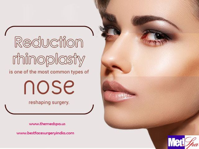 Rhinoplasty surgery is the right choice for teenagers and adults to get rid of there wide nose and hump. After rhinoplasty the nose now fits the face, has better lines, and helps give you confidence.   #nose, #nosejob, #nosecorrection, #reductionrhinoplasty, #augmentationrhinoplasty, #nosetip, #cleftpalate, #nosereshaping, #birthdeformities, #nasaltip, #cosmeticsurgery, #noseplasticsurgery, #surgery, #surgeon, #doctor, #treatments #cost #price #Delhi #India #SouthDelhi