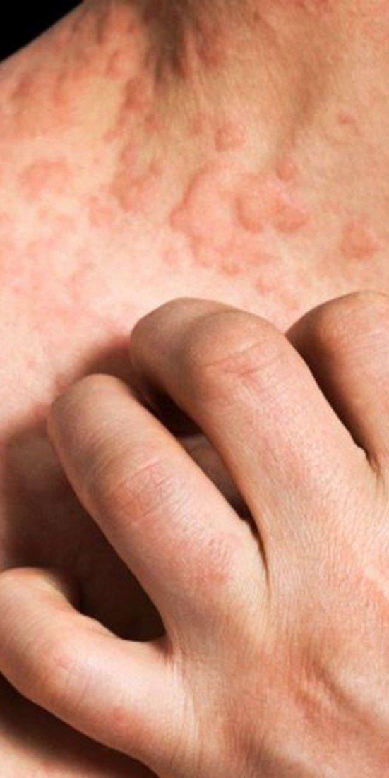 Itchy skin condition also linked to a number of other ills, skin specialist says