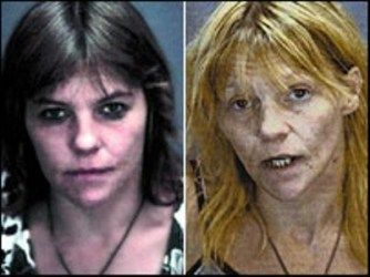 Awful Transformation After Abusing Heroin