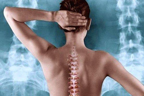 Οδηγός διατροφής κατά της οστεοπόρωσης. | ΥΓΕΙΑ - ΔΙΑΤΡΟΦΗ - ΕΥΕΞΙΑ -ΟΜΟΡΦΙΑ