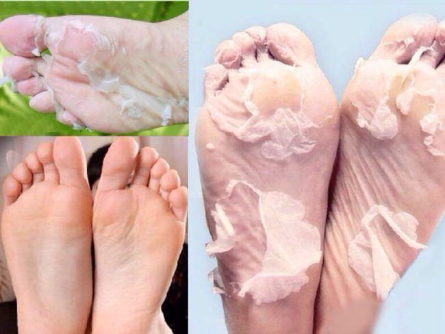 Κόλπο για να φύγει το νεκρό δέρμα από τις πατούσες χωρίς τρίψιμο!Δε θα το πιστεύετε αλλά όσο και να σας φαίνεται απίθανο υπάρχει! Το δοκίμασα και δεν το πίστευα.    Τα πόδια μου χωρίς καθόλου τρίψιμο έγιναν