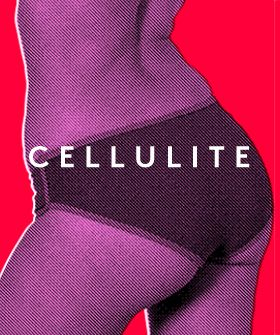 The Truth About Cellulite: Myths Busted, Treatment, and Prevention (via #Refinery29)
