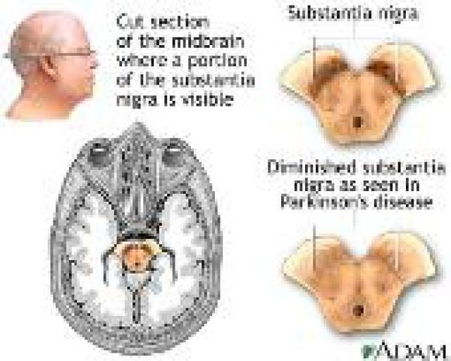an analysis of the depletion of dopamine and the brain resulting parkinsons disease To cite this abstract in ama style: gn babu, m gupta, vk paliwal, s singh, r roy metabolomics study in a group of parkinson's disease patients from.