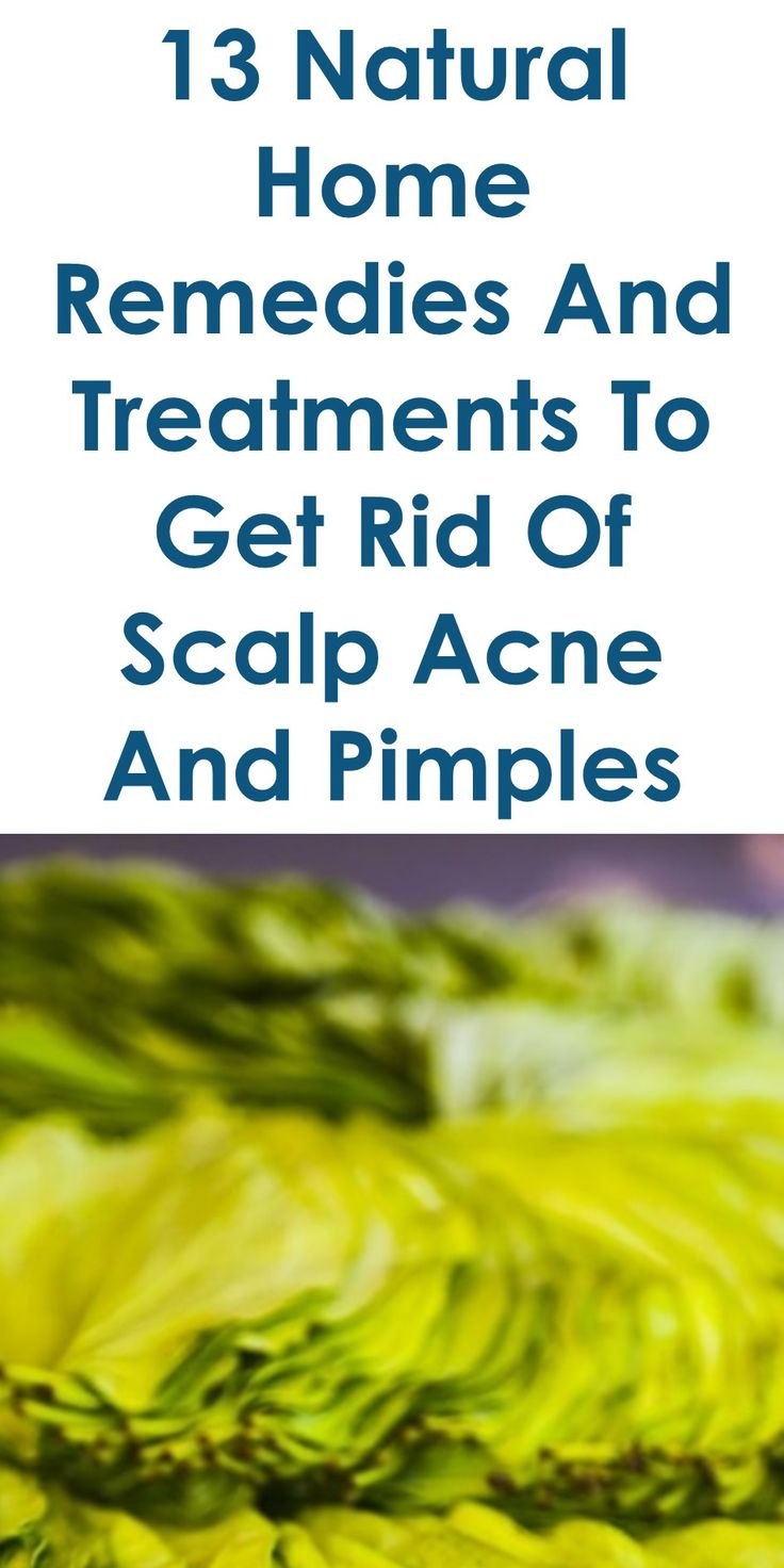causes and treatment of acne essay Look into what causes your consideration in  acne is like a bad credit rating — no matter  sleep deprivation essay treatment for insomnia and.