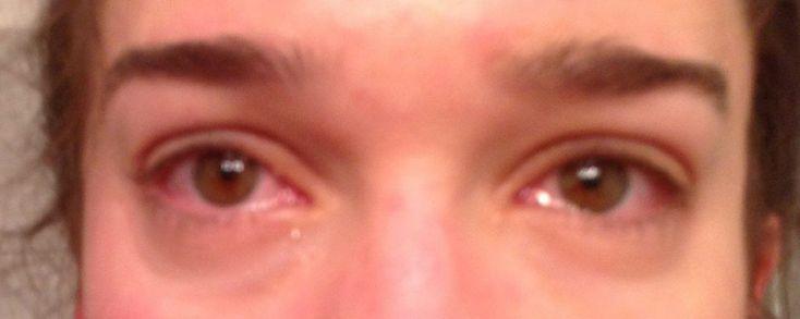 Augengrippe - oder auch schwerster Alkohol- und Drogenkonsum?