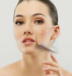 Laser Facial for Acne Reduction At some point in life, most of us must have faced acne and some are still facing the same. Trust our skin managers to help clear your skin with the 'Acne Reduction' treatment. Laser facial is a treatment which prevents the acne causing bacteria to breakout further. As every skin type is different, our skin expert will recommend you proper guidance and help you in clearing your skin with suitable treatments.  #goodbyeacne #skincare #laserfacial…