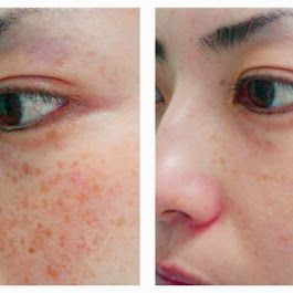 Visit our site http://zrocderm.com/ for more information on Dermatologist Fort Lauderdale. Dermatologist Fort Lauderdale is a clinical physician who specializes in the treatment of disorders that impact the skin, nails and hair. Some of these problems consist of, yet are not restricted to, acne breakouts, chronic eczema, psoriasis, skin cancer cells, moles, melanomas and skin growths.