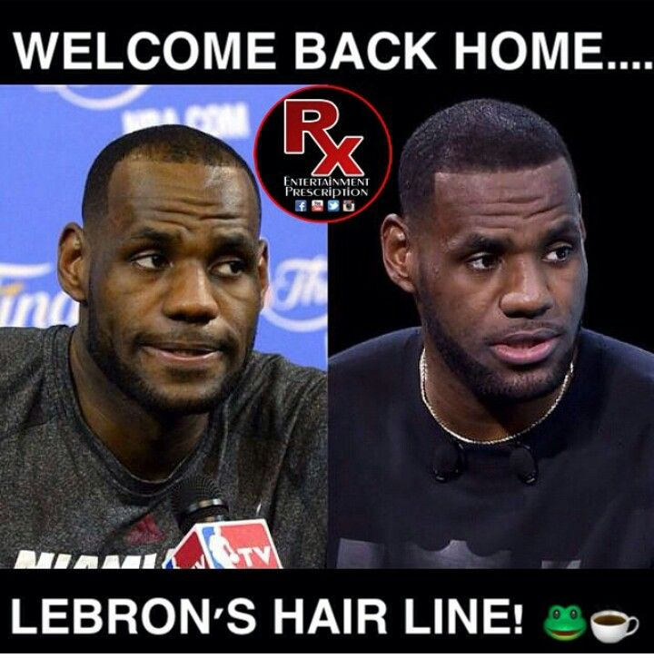 Lebron James Hairline