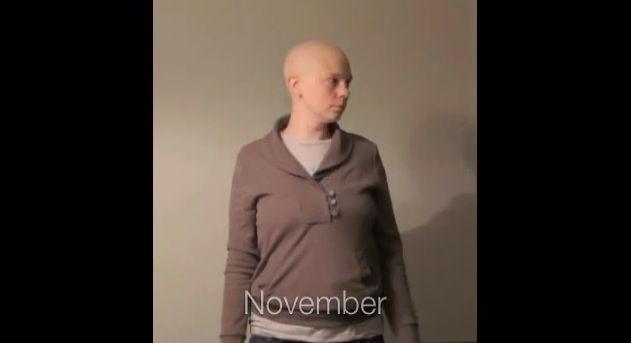 Mujer Que Combate El Cancer Comparte Asombrosas Fotos de Su Lucha. Un Año En 60 Segundos.