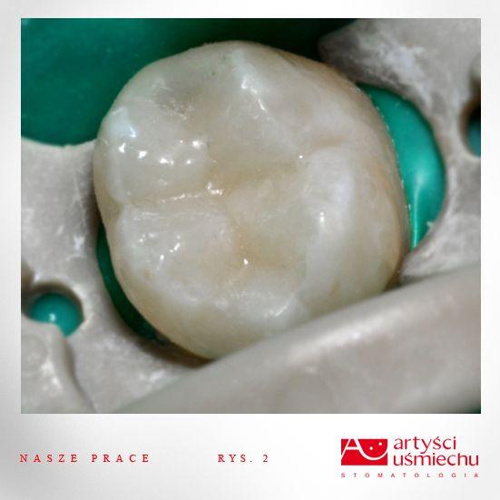 Ząb po wykonanym zabiegu odbudowy kompozytowej wykonanej w powiększeniu przez Dr Karola Babińskiego. 100% naturalny wygląd odbudowanego zęba.