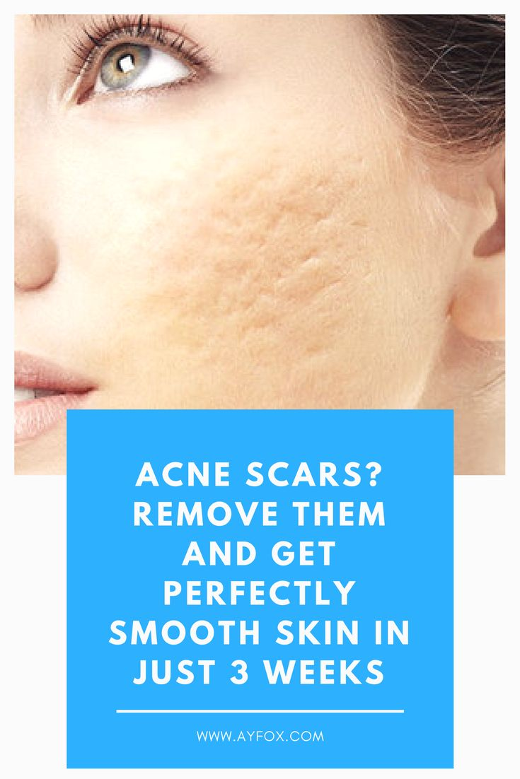 Acne Scars? Remove Them And Get Perfectly Smooth Skin In Just 3 Weeks #acne #acnescars  #ayfox  #beauty