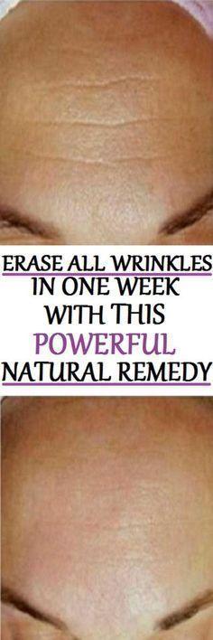 Powerful Natural Remedy That Eliminates All Wrinkles in One Week! A Must Try Recipe