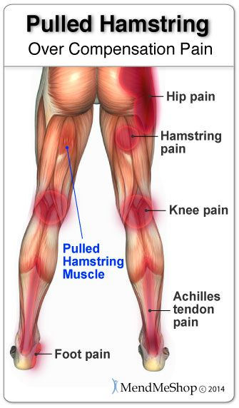 An injury to the hamstring will potentially lead to aches and pains affecting the foot, knee, or hip. #pulledhamstring