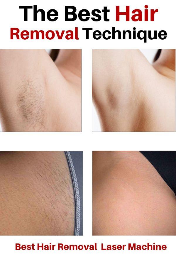 Laser Hair Removal Ipl Laser Epilator Hair Removal Tools Women Laser Hair Hair Removal Ipl Laser