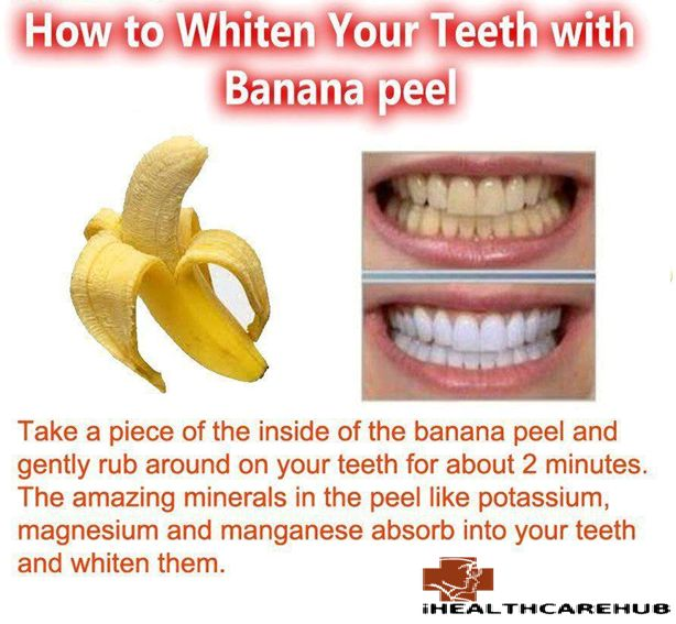 Using banana peel to whiten teeth is the latest trend and it is very safe and healthy for teeth as banana peels are a wonderful source of minerals and vitamins for advocates of natural dental care.