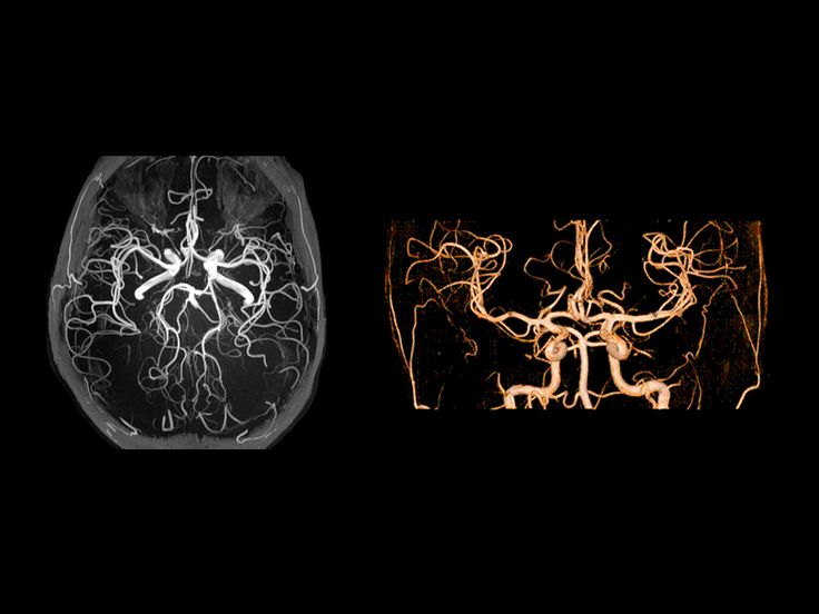 MAGNETOM Prisma - MRI Scanner - Siemens Healthcare Excellent flow sensitivity and time-resolved Angiography with XR 80/200 Depiction of smaller vessels without contrast agent with ToF angiography Enhanced flow effects with XR 80/200 gradient system Higher SNR Extreme iPAT performance with Tim 4G Global