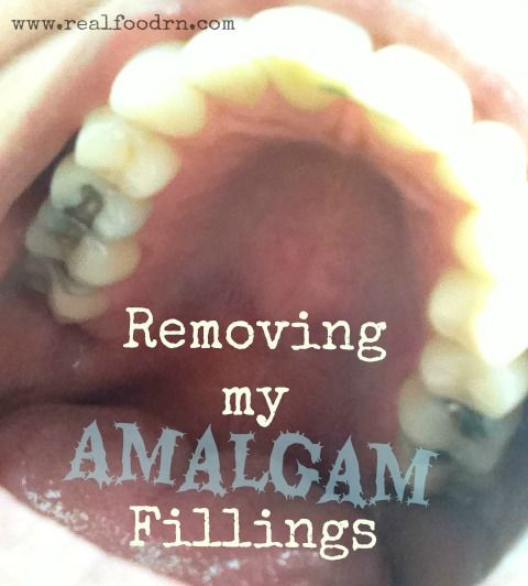 Removing my Amalgam fillings to get the mercury out! if you still have fillings but get a few removed, immediately take activated charcoal or other binder after appt to mop up any loosed mercury. Take big dose of vit c in the evening and continue on the vit c. Helps protect against further damage.  epsom salt baths, maybe even half a bottle of hydrogen peroxide in bath.