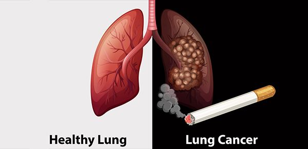 Cancer center treat all types of lung cancer, including squamous cell carcinoma, adenocarcinoma, large cell carcinoma . We also giving advanced lung cancer screening at on reasonable  cost.