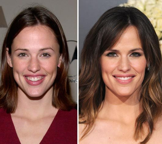Best Places In The World To Have Plastic Surgery: Jennifer Garner Plastic Surgery Before & After