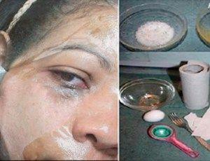 Bombou na internet: Confira como eliminar acne, manchas e pontos negros com apenas 2 ingredientes! - Ideal Receitas