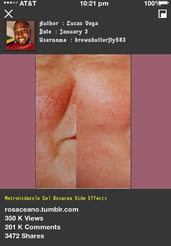 Metronidazole Gel Rosacea Side Effects 133128 - Rosacea Free Forever.